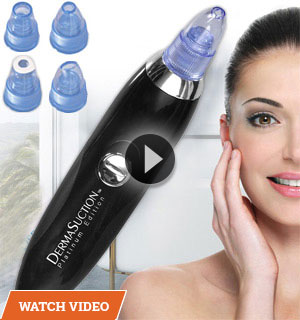 Dermasuction Deluxe Platinum Blackhead Remover